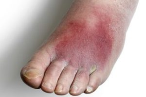 Elderly Person's Foot with Cellulitis