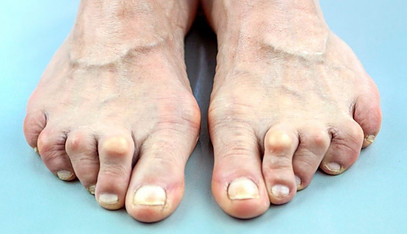 Rheumatoid arthritis in elderly woman's foot
